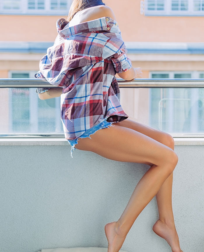 woman with long varicose vein free legs looking over balcony